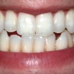 Ecco le 7 abitudini che fanno male ai denti