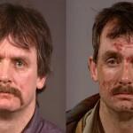 Effetti della droga sulla pelle: ecco come cambia i connotati (FOTO)