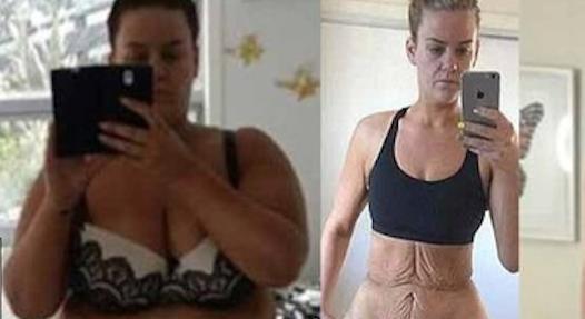 perdere più peso dopo addominoplasticamente