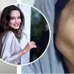 Per somigliare ad Angelina Jolie cinquanta interventi e diete e adesso questa ragazza è spaventosa (Foto)