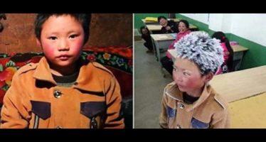 bambino ricoperto dal ghiaccio arriva a scuola