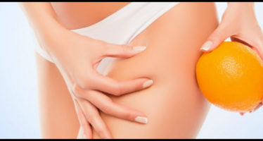 come nascondere la cellulite