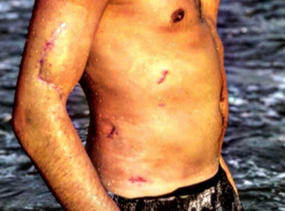 Niccolò Bettarini mostra le cicatrici, i segni delle coltellate della terribile aggressione (Foto)