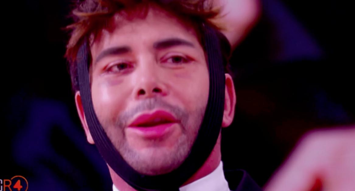 Giacomo Urtis irriconoscibile dopo il lifting, col volto tumefatto in tv (Foto)