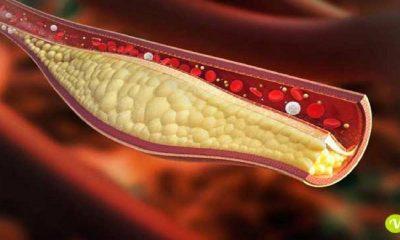 steroli vegetali contro il colesterolo cattivo