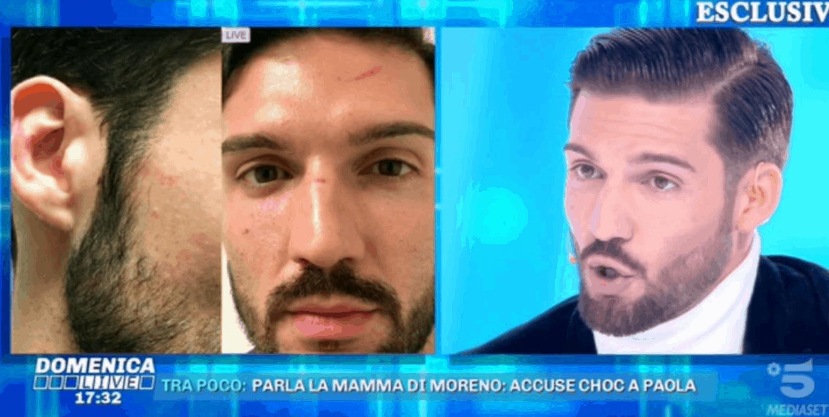 Moreno Merlo a Domenica Live mostra i segni delle botte di Paola Caruso: prove schiaccianti a suo dire
