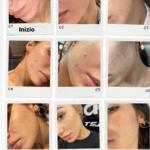 Giulia De Lellis si mostra con l'acne per essere d'aiuto a chi ha lo stesso problema