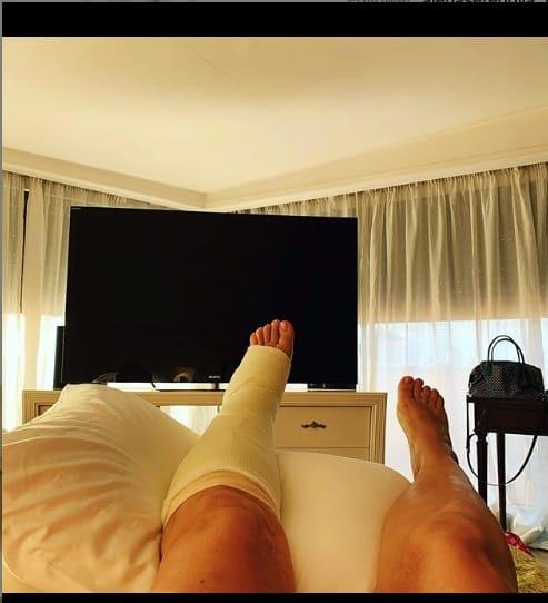 Frattura al piede per Mara Venier che mostra le foto col gesso