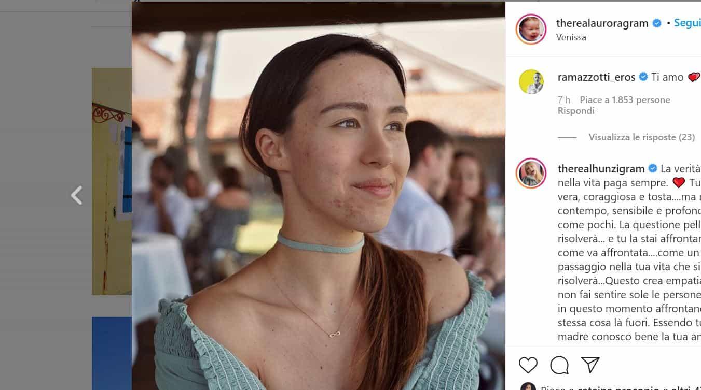 Aurora Ramazzotti mostra le sue imperfezioni sui social: mamma e papà orgogliosi di lei