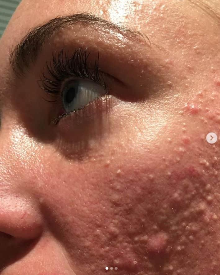 Laura Cremaschi toglie i filtri e mostra il viso con l'acne, dopo Aurora Ramazzotti altre trovano il coraggio (Foto)