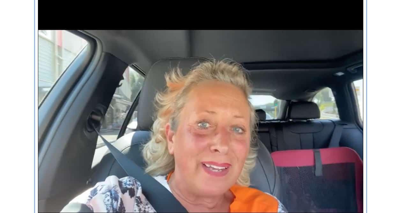 Lo sfogo di Carolyn Smith contro chi l'accusa che in ospedale sia una privilegiata (Foto)