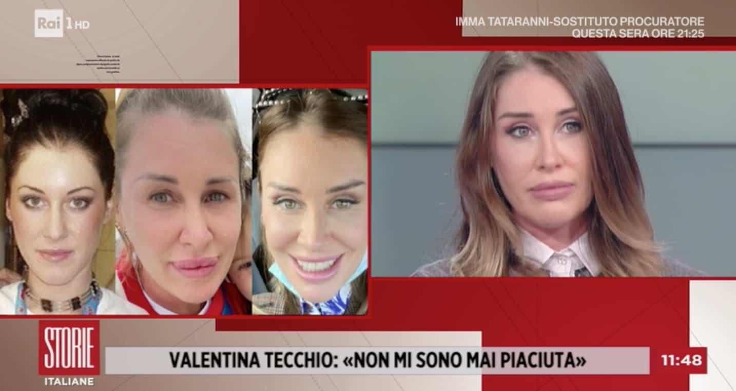 Valentina Tecchio pentita della chirurgia estetica, a Storie Italiane la sua trasformazione