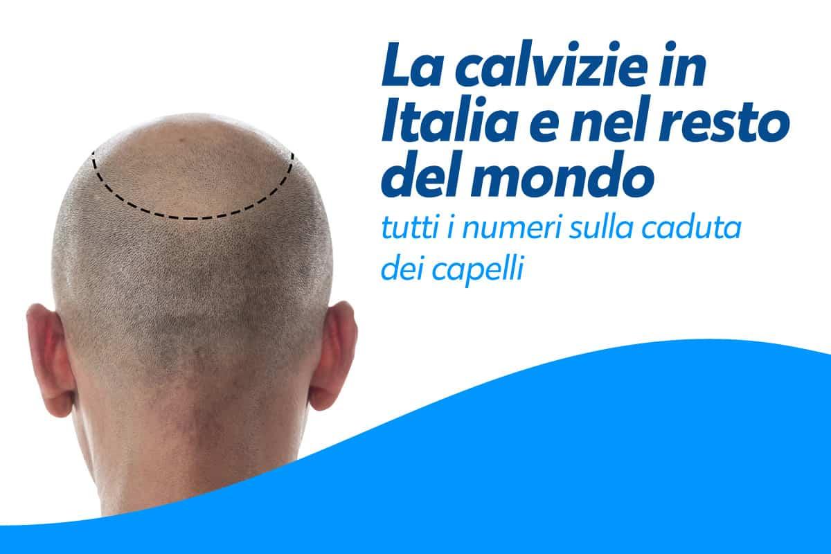 Calvizie in Italia: cause, statistiche e rimedi