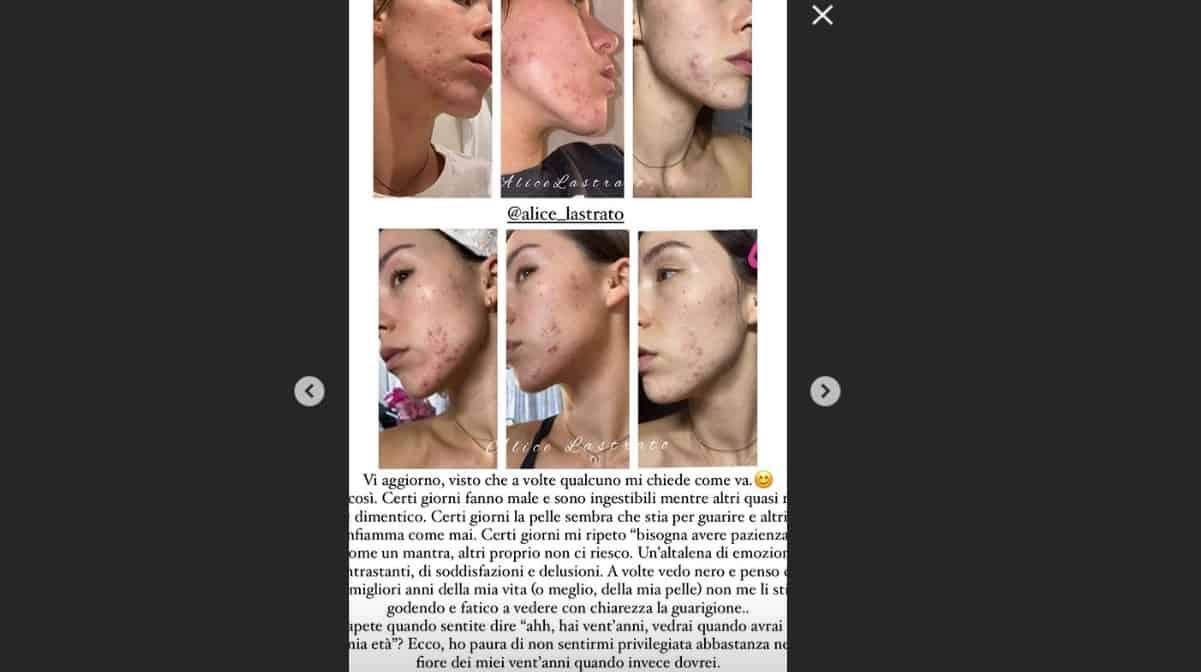 """Aurora Ramazzotti aggiorna sull'acne: """"A volte vedo nero altri quasi me ne dimentico"""" (Foto)"""