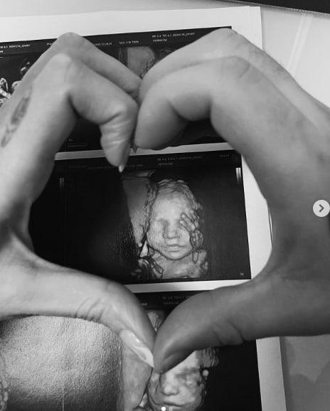 Nuova ecografia per Chiara Ferragni e la sorellina di Leo è la fotocopia della mamma (Foto)