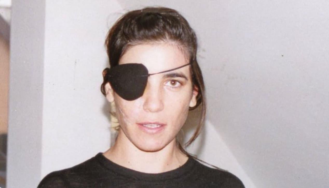 Paola Turci dopo l'incidente, per la prima volta mostra le cicatrici (Foto)