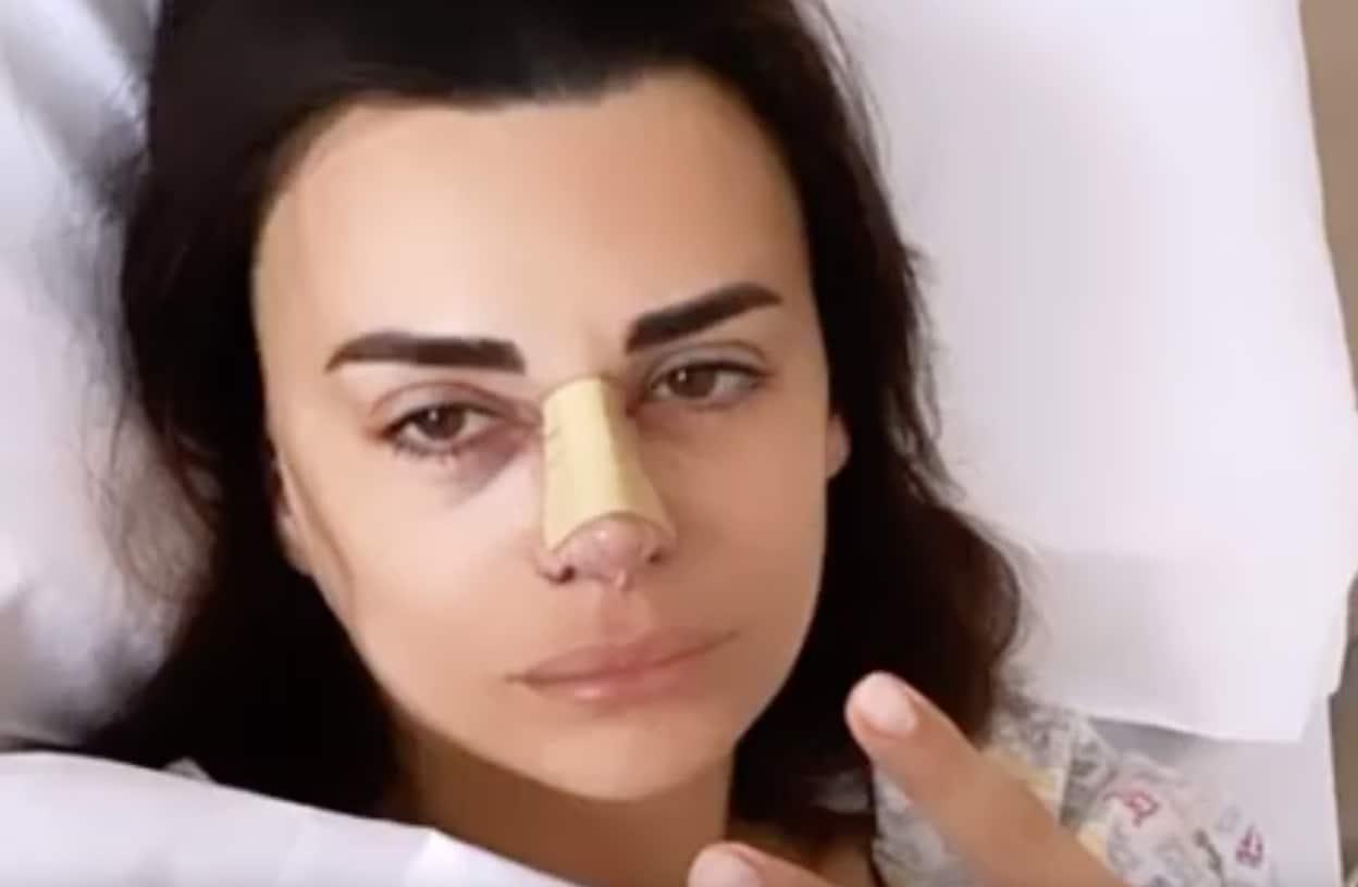 Elga Enardu dopo l'operazione col naso rifatto spiega tutto a chi la critica (Foto)