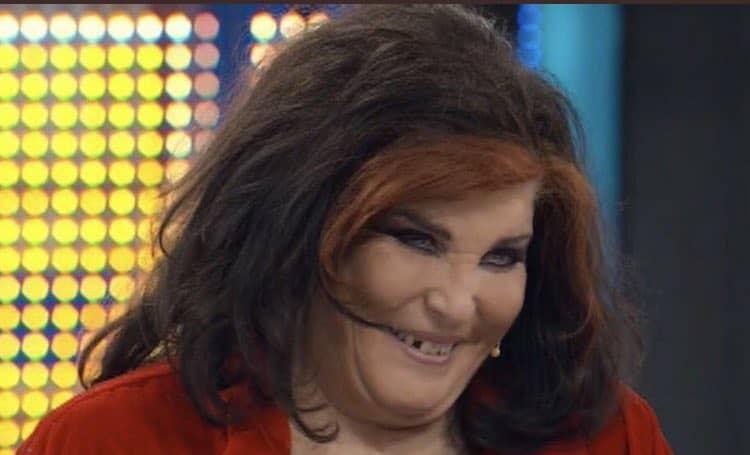 La contessa De Blanck senza un dente ad Avanti un altro: cosa è successo