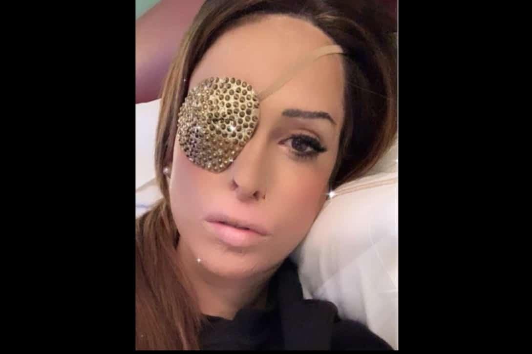 """Gessica Notaro di nuovo in sala operatoria per il viso: """"E' stata dura"""""""