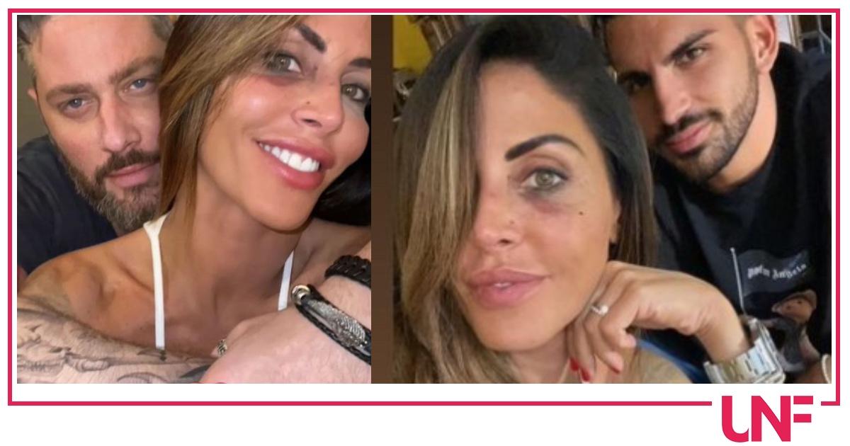 """Il compagno di Guendalina Tavassi mostra l'occhio nero: """"Non perdi mai il sorriso"""""""