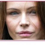 Le labbra di Francesca Neri piene di cicatrici, spiega il motivo