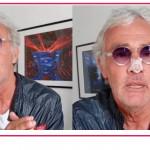 Massimo Giletti in tv col naso fratturato, incidente per il conduttore